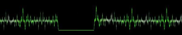 NDE, Near Death Experience, flatline, death, no heartbeat, PRF